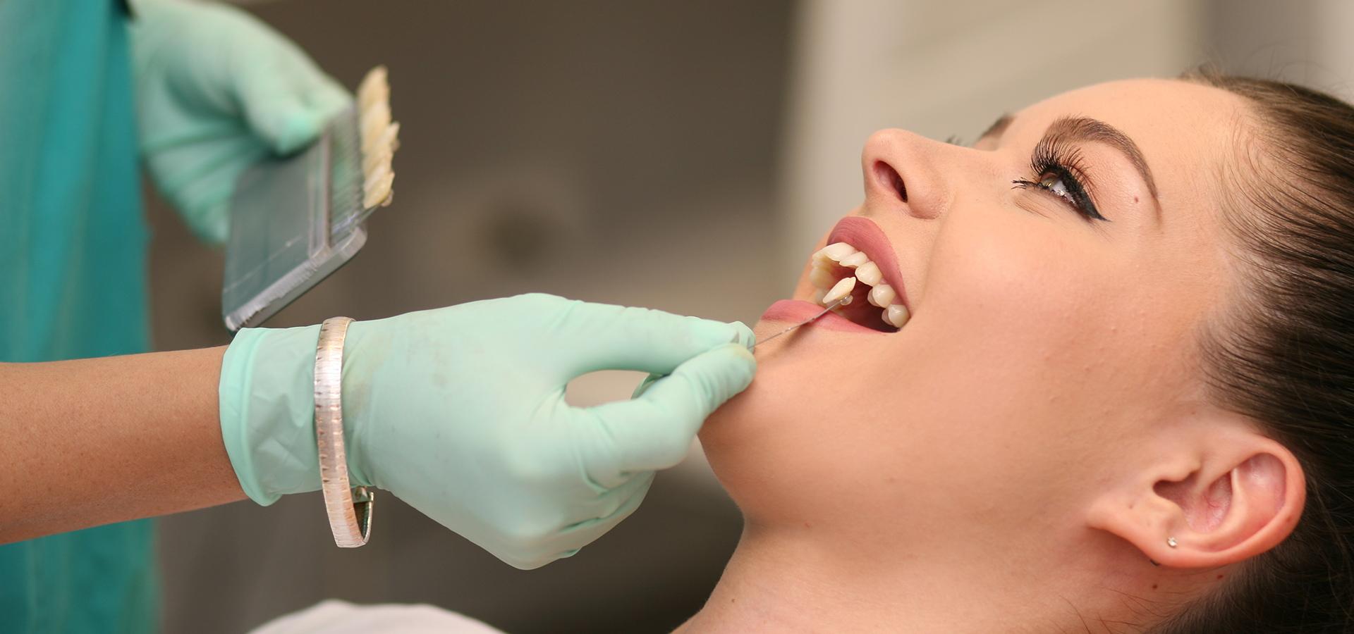 Facetas Dentárias de Porcelana