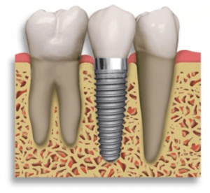 implante dentário lisboa